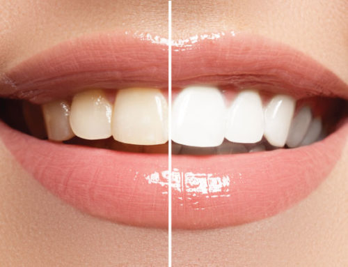 New Year with Teeth Whitening